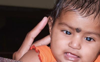 Cataract?