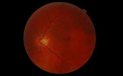 Retina?