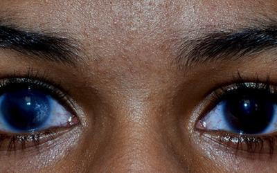 Glaucoma?