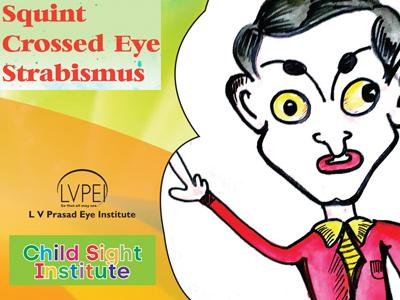 pediatric strabismus